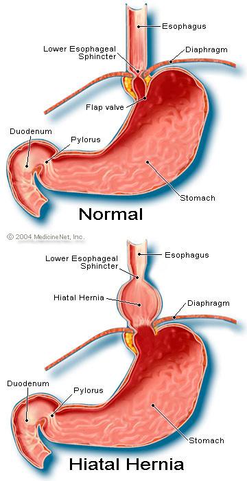How Is A Hiatal Hernias Diagnosed لم يسبق له مثيل الصور Tier3 Xyz