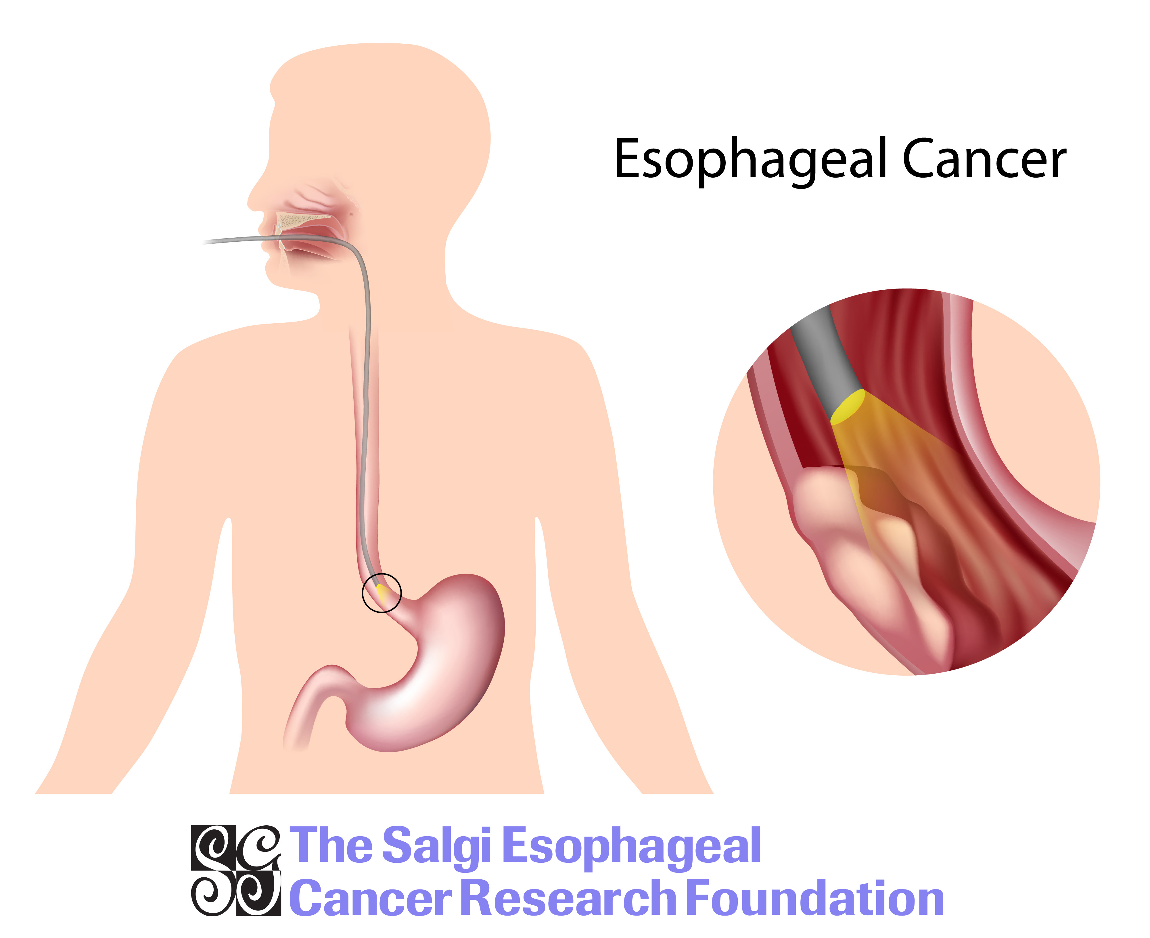 All About Esophageal Cancer forecasting