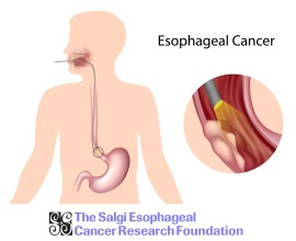 esophageal cancer, esophageal cancer ri, esophagus cancer, cancer of the esophagus, cancer ri, ri cancer, ri esophageal cancer, cancer treatment, cancer ri treatment, esophageal cancer treatment, esophageal cancer treatment ri, rhode island cancer, cancer rhode island, nonprofit, non profit ri, ri nonprofit, ri non-profit, esophageal non profit, esophagus, barret esophagus, barret esophagus ri, esophagus ri, ri esophagus, esophageal cancer rhode island, gerd, GERD ri, ri gerd, GERD treatment, GERD, GERD help, heartburn, heartburn ri, heartburn treatment, treatment heartburn, acid reflux, acid reflux ri, acid reflux treatment, acid reflux help, ri acid reflux, esophageal cancer, esophageal cancer ri, ri cancer, cancer ri, cancer rhode island, esophageal cancer rhode island, rhode island esophageal cancer, heartburn, acid reflux, gerd, reflux, gerd reflux, acid, pain in chest, doctor ri, gi doctor ri, gastroenterologist ri, ri gastroenterologist, ri health, health ri, esophageal cancer awareness, esophageal cancer treatment, esophageal cancer diagnosis, esophageal cancer research, esophageal cancer donate, esophageal cancer funding, esophageal cancer fund, esophageal cancer funds, esophageal cancer , esophageal cancer awareness, esophageal cancer nonprofit, esophageal cancer events, esophageal cancer rhode island, esophageal cancer new england, esophageal cancer Massachusetts, esophageal cancer screening, esophageal cancer detection, esophageal cancer signs, esophageal cancer symptoms, esophageal cancer diagnosis, esophageal cancer doctors, esophageal cancer doctors in ri, esophageal cancer doctor ri, esophageal cancer symptom, esophageal cancer heartburn, heartburn can cause cancer, cancer heartburn, heartburn cancer, esophageal cancer salgi, esophageal cancer rates, esophageal cancer death, esophageal cancer death rate, esophageal cancer survivors, esophageal cancer survivor, esophageal cancer survivorship, esophageal cancer surviving, esophageal cancer groups, esophageal cancer organizations, esophageal cancer teams, esophageal cancer board, esophageal cancer charity, esophageal cancer nonprofit, esophageal cancer money for research, Networking RI, cancer ri, esophageal cancer, cancer in ri, networking event ri, cancer charity, cancer research, cancer charity ri, cancer research ri, esophageal cancer awareness, esophageal cancer awareness ri, esophageal cancer research ri, esophageal cancer research, esophageal cancer prevention, esophageal cancer prevention ri, esophageal cancer cure, esophageal cancer, in hopes of a cure, networking cancer, cocktails in hopes of a cure, cocktails, Esophageal Cancer Walk/Run, Cancer Walk, Cancer Walk RI, Walk RI, Run RI, Rhode Island Walk, Rhode Island Cancer, Cancer Walks in RI, Cancer Run in RI, Run for charity, Run in RI, cancer run, cancer walk, cancer walk ri, cancer run ri, esophageal cancer, cancer of the esophagus, cancer, esophageal cancer ri, cancer of esophagus, ri cancer, cancer awareness, cancer research, cancer prevention, ri cancer research, ri cancer prevention, ri cancer treatment, ri cancer charity, charity ri, charity, cancer, treat esophageal cancer, treat cancer, treatment of esophageal cancer, treatment of esophageal cancer ri, acid reflux, heartburn can cause cancer, heartburn ri, acid reflux ri, heartburn, heartburn remedy, heartburn remedies, acid reflux remedies, charity run ri, charity walk ri, run for cancer esophageal cancer, esophageal cancer ri, ri cancer, cancer ri, cancer rhode island, esophageal cancer rhode island, rhode island esophageal cancer, heartburn, acid reflux, gerd, reflux, gerd reflux, acid, pain in chest, doctor ri, gi doctor ri, gastroenterologist ri, ri gastroenterologist, ri health, health ri, esophageal cancer awareness, esophageal cancer treatment, esophageal cancer diagnosis, esophageal cancer research, esophageal cancer donate, esophageal cancer funding, esophageal cancer fund, esophageal cancer funds, esophageal cancer , esophageal cancer awareness, esophageal cancer nonprofit, esophageal cancer events, esophageal cancer rhode island, esophageal cancer new england, esophageal cancer Massachusetts, esophageal cancer screening, esophageal cancer detection, esophageal cancer signs, esophageal cancer symptoms, esophageal cancer diagnosis, esophageal cancer doctors, esophageal cancer doctors in ri, esophageal cancer doctor ri, esophageal cancer symptom, esophageal cancer heartburn, heartburn can cause cancer, cancer heartburn, heartburn cancer, esophageal cancer salgi, esophageal cancer rates, esophageal cancer death, esophageal cancer death rate, esophageal cancer survivors, esophageal cancer survivor, esophageal cancer survivorship, esophageal cancer surviving, esophageal cancer groups, esophageal cancer organizations, esophageal cancer teams, esophageal cancer board, esophageal cancer charity, esophageal cancer nonprofit, esophageal cancer money for research, the salgi foundation, the salgi esophageal cancer research foundation, salgi, salgi foundation, salgi esophageal, salgi esophageal cancer, salgi esophageal cancer research, salgi esophageal cancer research foundation, salgi esophageal foundation, foundation salgi, esophageal cancer awareness salgi, esophageal cancer awareness salgi ri, ri esophageal cancer awareness salgi, ri salgi esophageal cancer, salgi esophageal cancer awareness ri salgi, salgi treatment esophageal cancer, salgi treatment esophageal cancer awareness, salgi treatment esophageal cancer awareness ri, Esophageal Cancer Walk/Run, Cancer Walk, Cancer Walk RI, Walk RI, Run RI, Rhode Island Walk, Rhode Island Cancer, Cancer Walks in RI, Cancer Run in RI, Run for charity, Run in RI, cancer run, cancer walk, cancer walk ri, cancer run ri, esophageal cancer, cancer of the esophagus, cancer, esophageal cancer ri, cancer of esophagus, ri cancer, cancer awareness, cancer research, cancer prevention, ri cancer research, ri cancer prevention, ri cancer treatment, ri cancer charity, charity ri, charity, cancer, treat esophageal cancer, treat cancer, treatment of esophageal cancer, treatment of esophageal cancer ri, acid reflux, heartburn can cause cancer, heartburn ri, acid reflux ri, heartburn, heartburn remedy, heartburn remedies, acid reflux remedies, charity run ri, charity walk ri, run for cancer