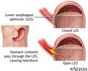 Lower esophageal sphincter (LES), Gastroesophageal Reflux Disease (GERD), Esophageal cancer, heartburn, acid reflux, reflux, chronic heartburn, awareness, education