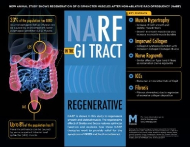 Learn about a new animal study showing that non-ablative radiofrequency (NARF) treatments Stretta and Secca actually regenerate muscle in the GI tract and provide relief for symptoms of GERD and fecal incontinence.
